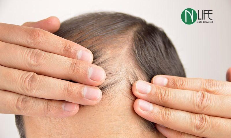 تقویت فولیکول های مو ، جلوگیری از ریزش مو و کمک به رشد مجدد آن