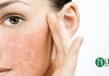 درمان طبیعی خشکی پوست صورت